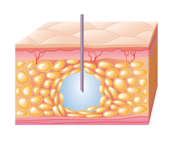 Subcutaneous Injection_w Needle